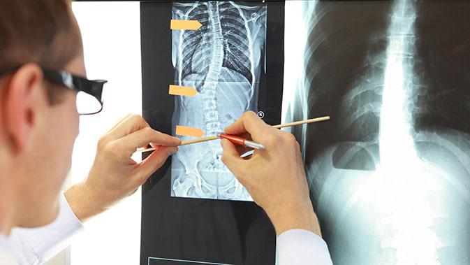 Röntgenaufnahme einer Wirbelsäule mit Skoliose